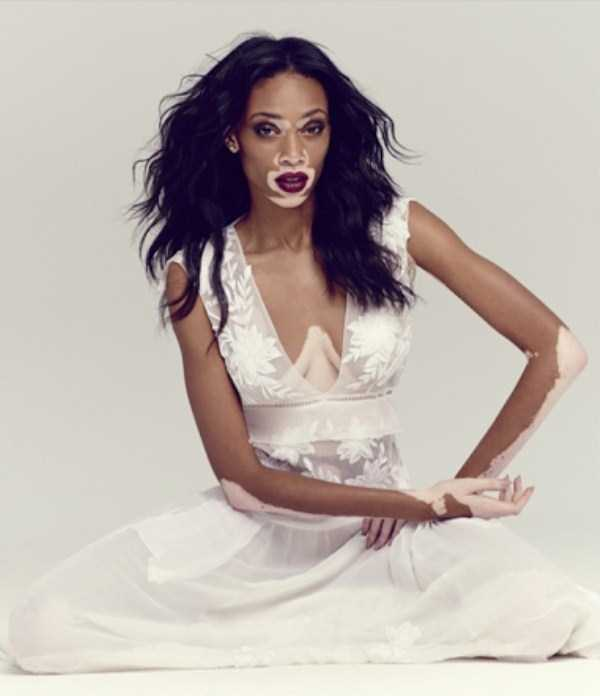 Winnie-Harlow-vitiligo-model (13)