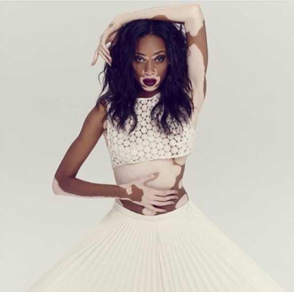 Winnie-Harlow-vitiligo-model (14)