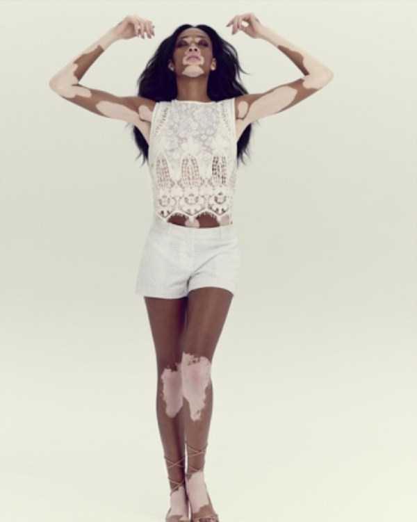 Winnie-Harlow-vitiligo-model (15)