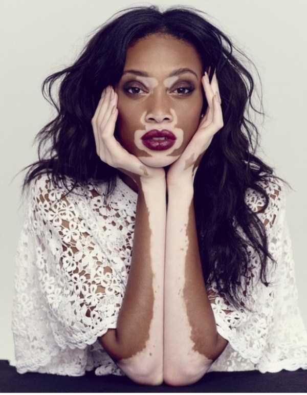 Winnie-Harlow-vitiligo-model (19)