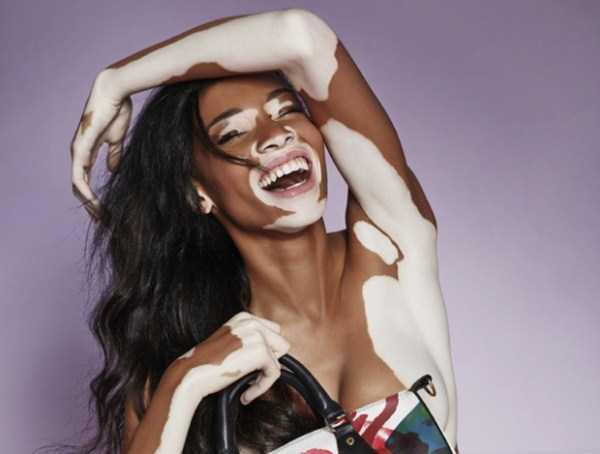 Winnie-Harlow-vitiligo-model (21)
