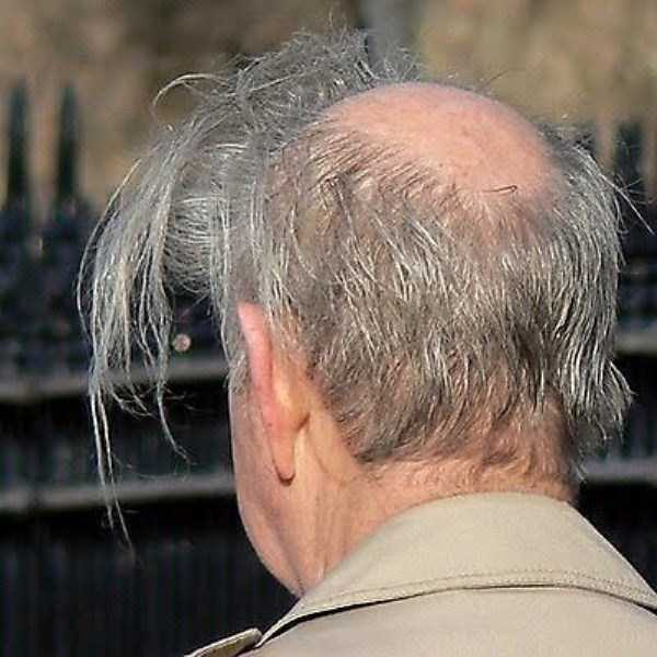 bald-men (15)