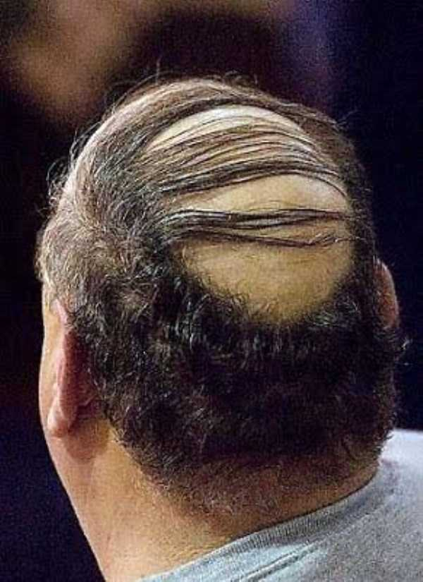 bald-men (16)
