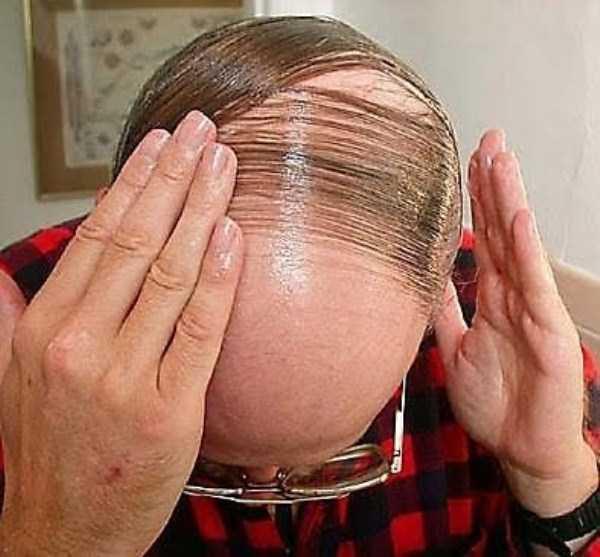 bald-men (17)