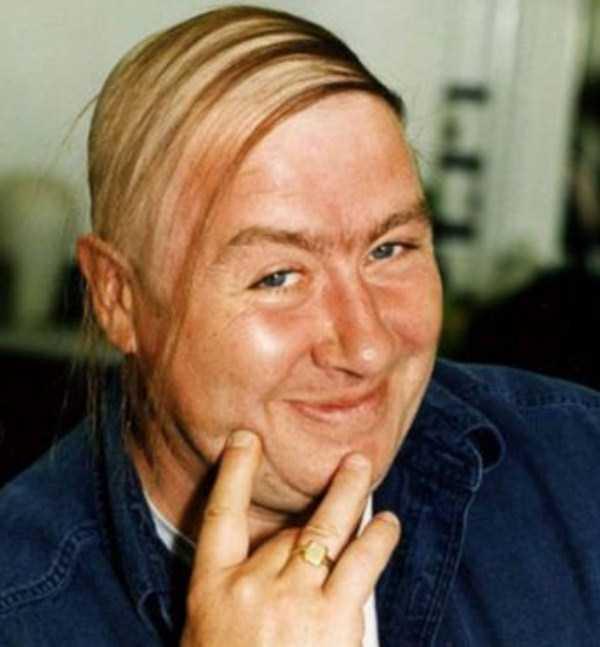 bald-men (25)