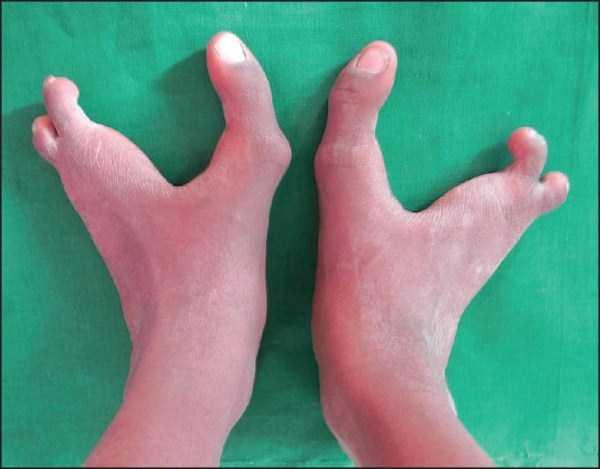 bizarre-human-body-parts (29)