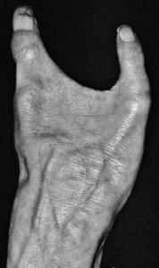 bizarre-human-body-parts (3)