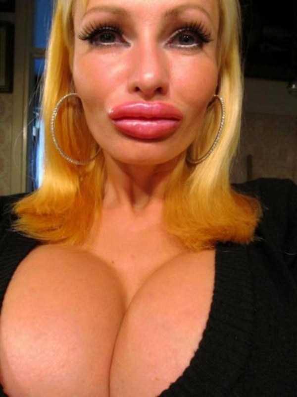 Victoria-Wild-plastic-surgery (9)
