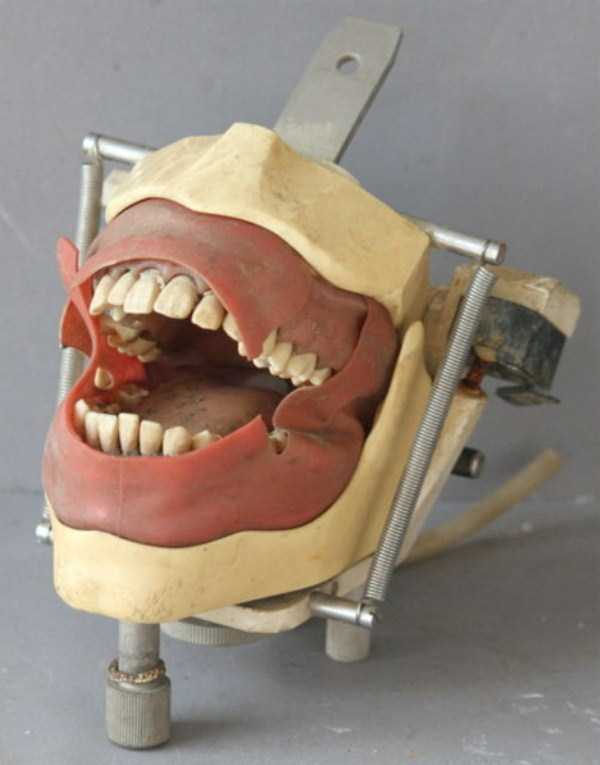 dental-equipment-from-the-past (14)