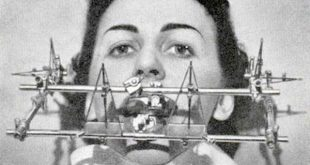 dental-equipment-from-the-past (1)_renamed_9038
