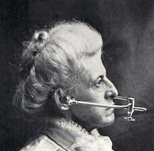 dental-equipment-from-the-past (3)