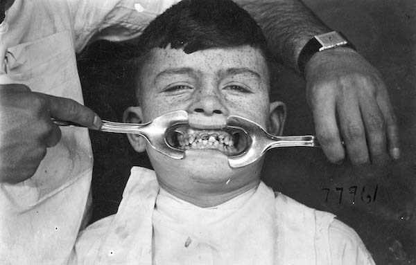 dental-equipment-from-the-past (5)