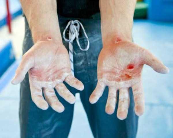 gymnasts-hands (1)