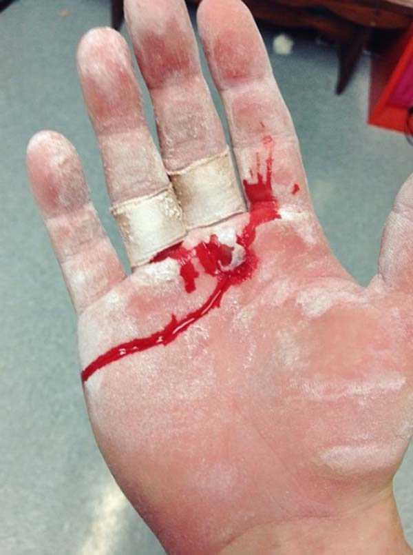 gymnasts-hands (12)