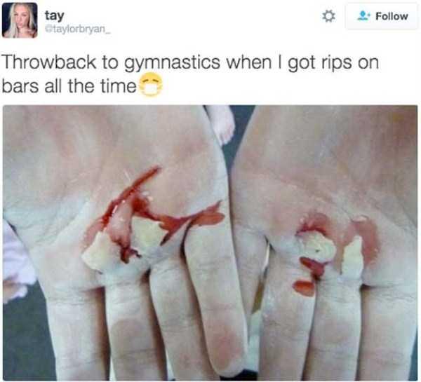 gymnasts-hands (13)
