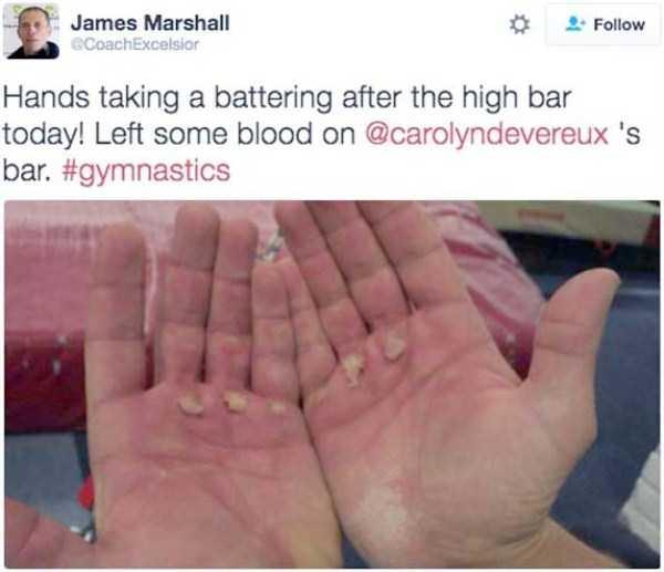 gymnasts-hands (17)
