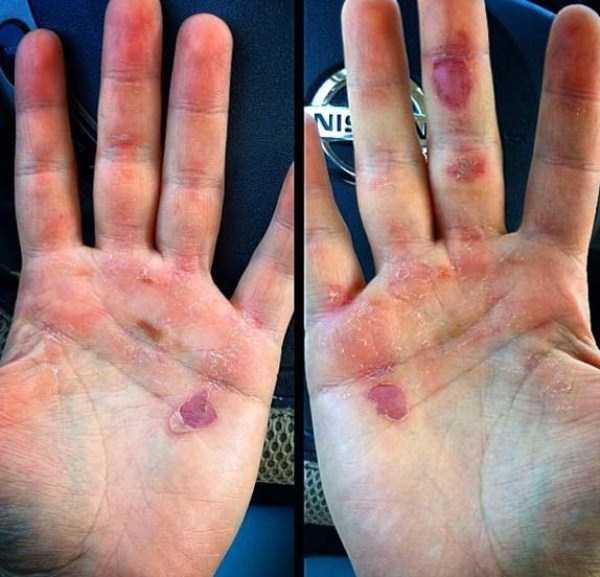 gymnasts-hands (19)