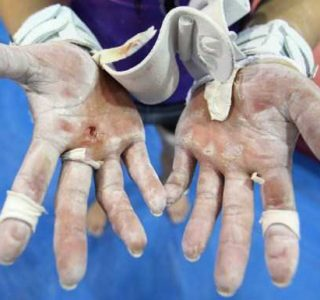 Gross-Looking Gymnasts' Hands (20 photos)