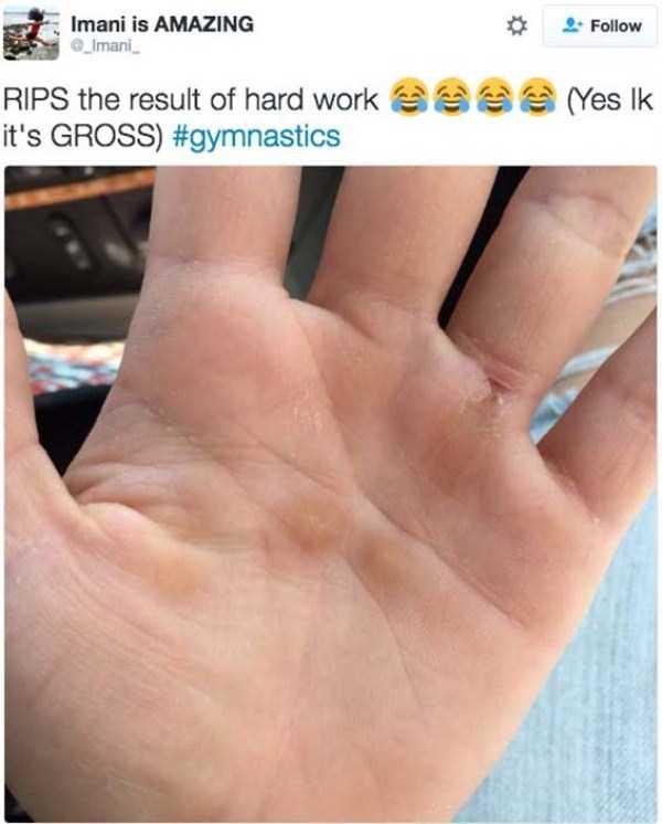 gymnasts-hands (4)