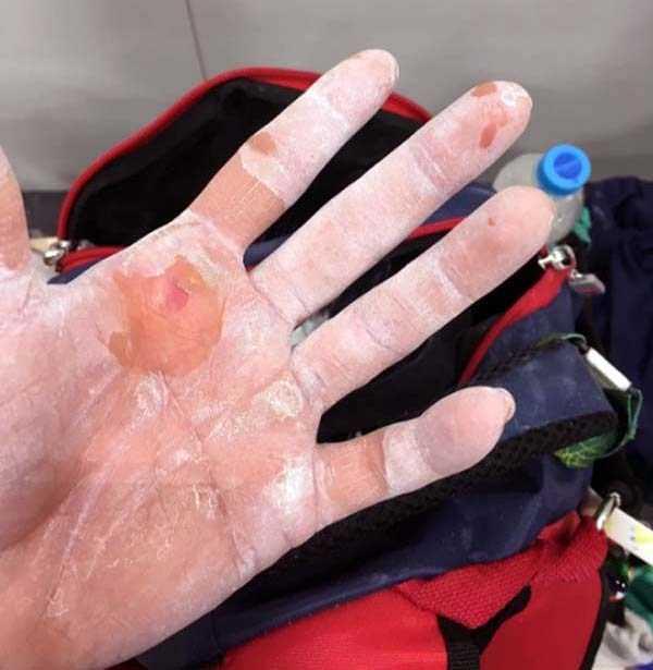 gymnasts-hands (5)