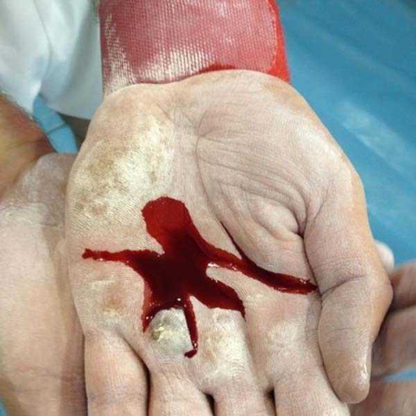 gymnasts-hands (9)