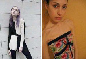 anorexia-girls (10)