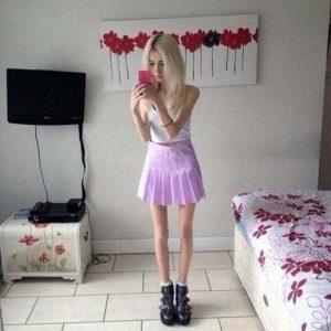 anorexia-girls (11)