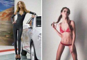 anorexia-girls (2)