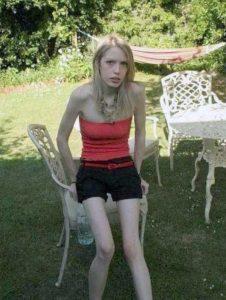 anorexia-girls (20)