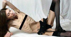 anorexia-girls (23)