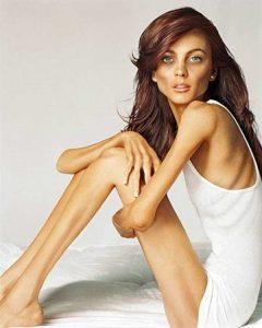 anorexia-girls (25)