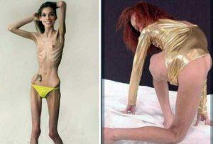 anorexia-girls (7)