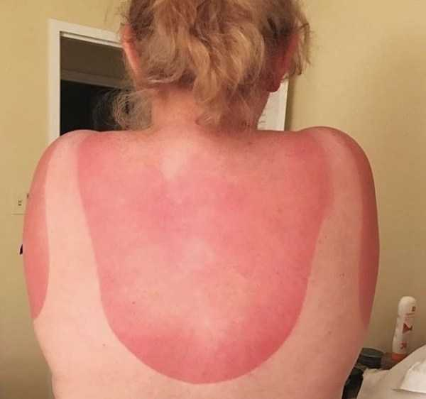 horrible-sunburns (22)