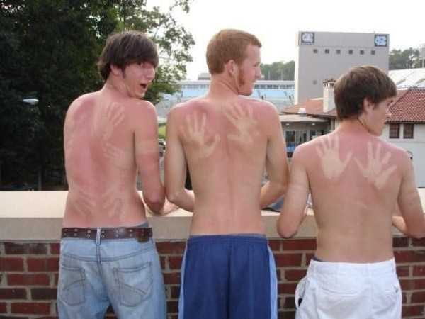 horrible-sunburns (27)