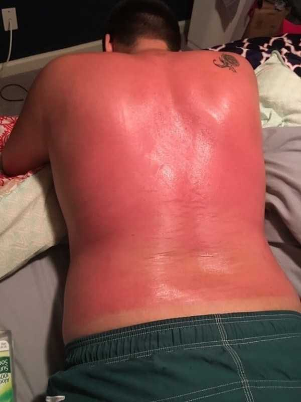 horrible-sunburns (3)