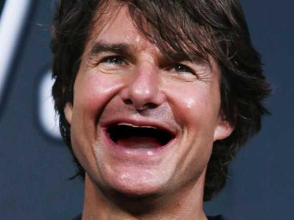 teethless-celebrities (1)
