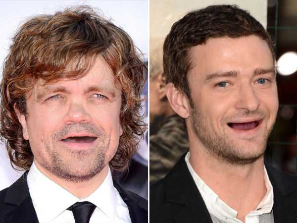 teethless-celebrities (10)
