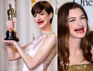 teethless-celebrities (12)