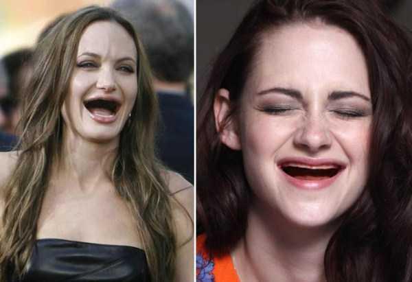 teethless-celebrities (14)