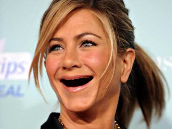 teethless-celebrities (15)