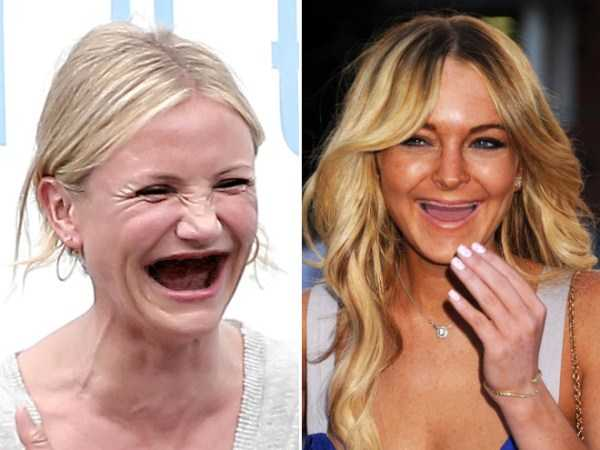 teethless-celebrities (19)