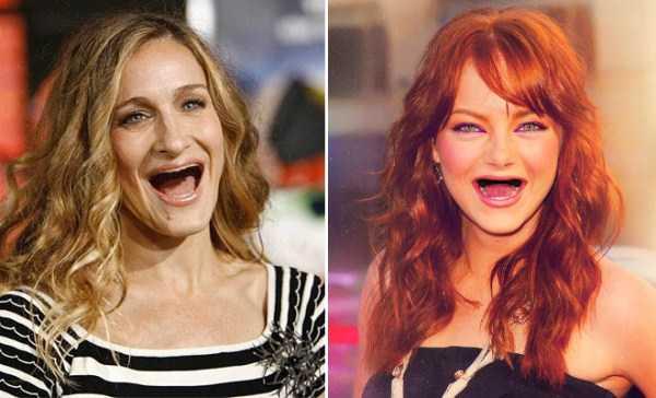 teethless-celebrities (6)