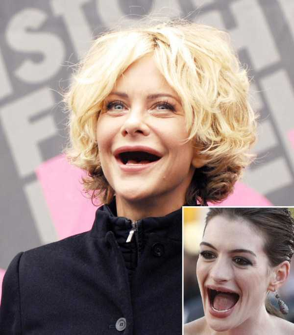 teethless-celebrities (8)