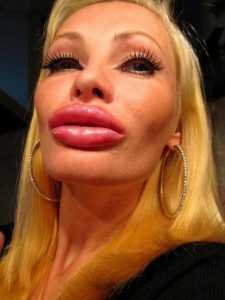girls-silicone-lips (2)
