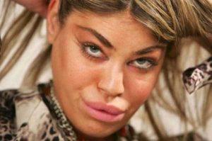 girls-silicone-lips (35)