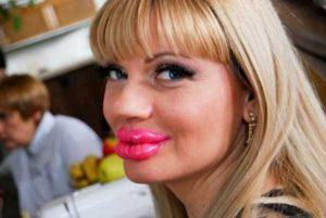 girls-silicone-lips (40)