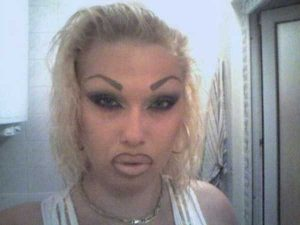girls-silicone-lips (42)