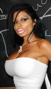 girls-silicone-lips (48)
