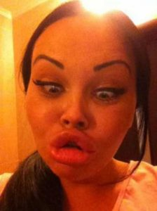 girls-silicone-lips (49)