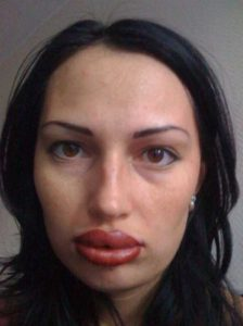 girls-silicone-lips (52)